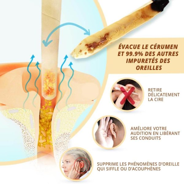 Bougies auriculaires