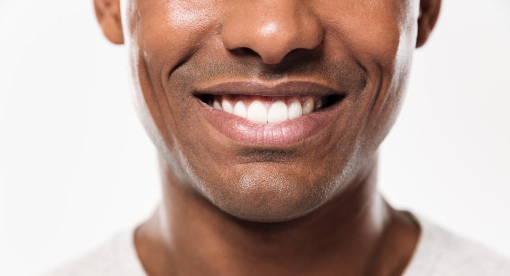 avoir-dents-blanches-naturellement