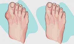 Sandales orthopédiques femme