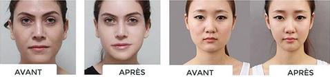 V-Shape Avant et Après