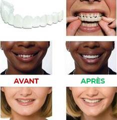 Dent parfaite